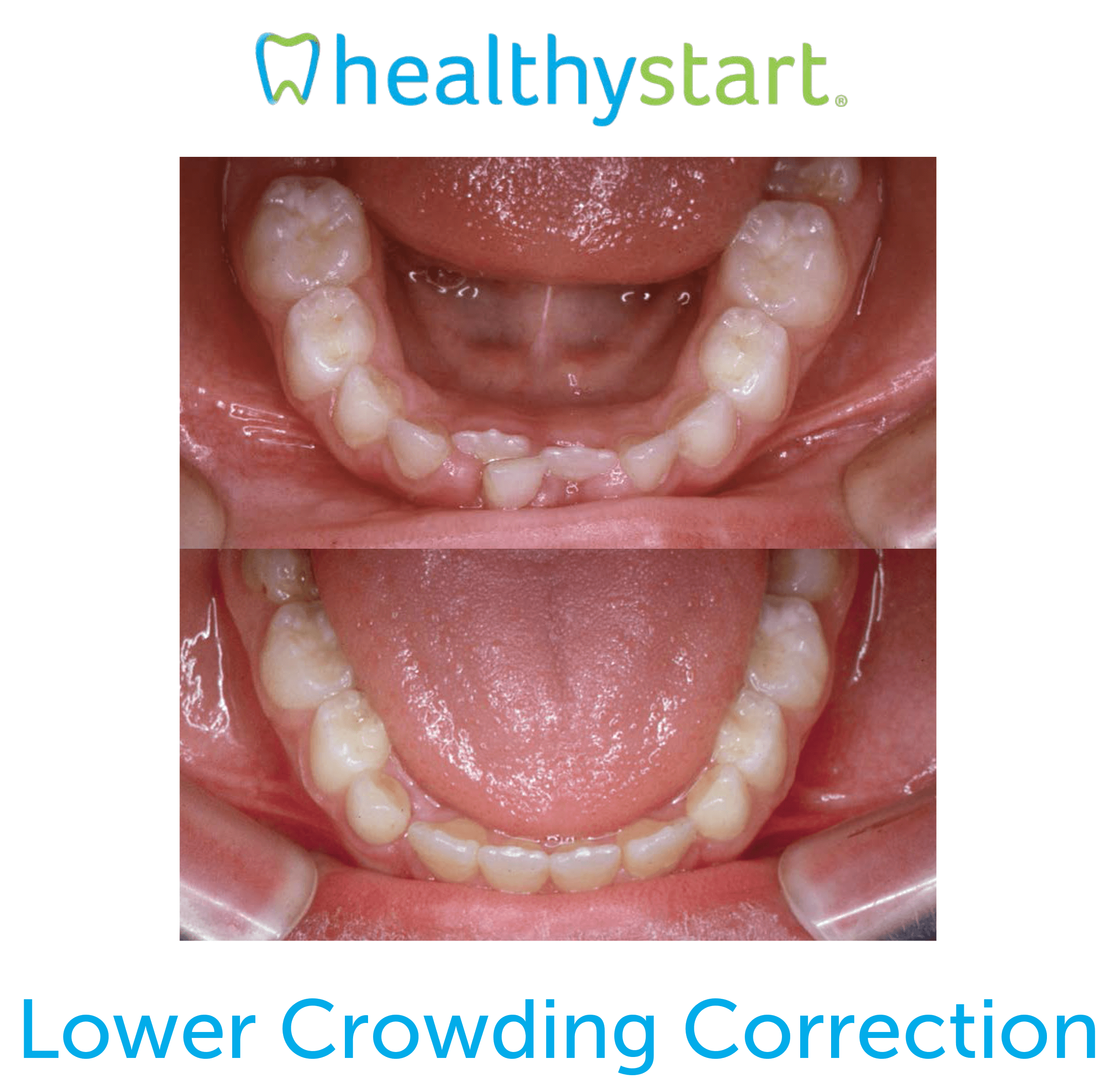 Lower Crowding Correction